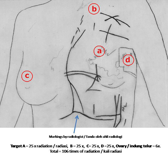 Pain in chest above right breast