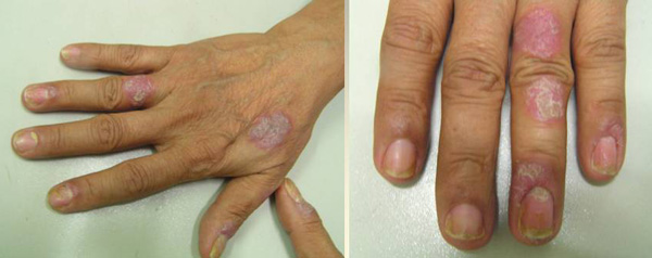 Psoriasis Ointments And Creams