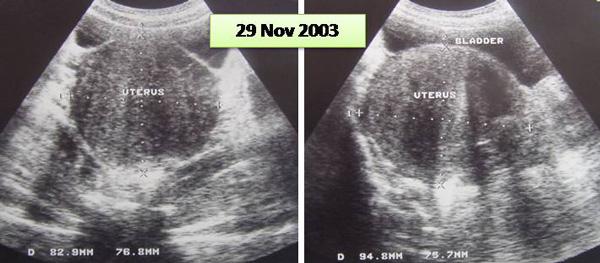 avent manual breast pump price malaysia