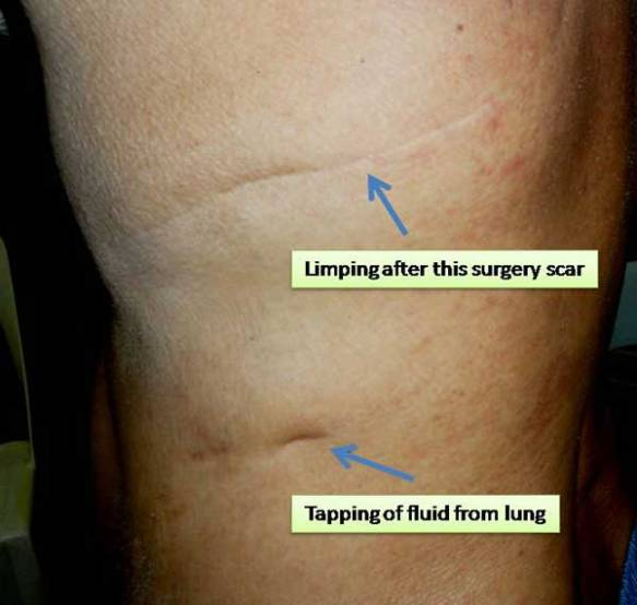 1-Limping-after-surgery