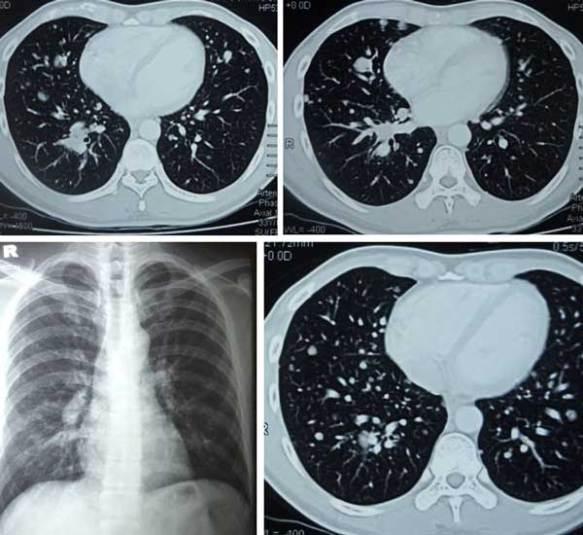 Composite-2-Lung-Met