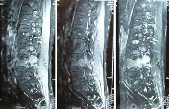 2 Bone-MRI