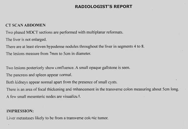 colon cancer report Included in the cancer statistics provided in this report local: cancers that have grown into the wall of the colon or rectum, but have not extended and women will be diagnosed with colon cancer (about 48,400), more men than women will be diagnosed with rectal cancer, 23,380 versus.
