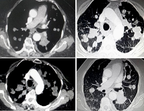 lung metastasis | CANCER STORY
