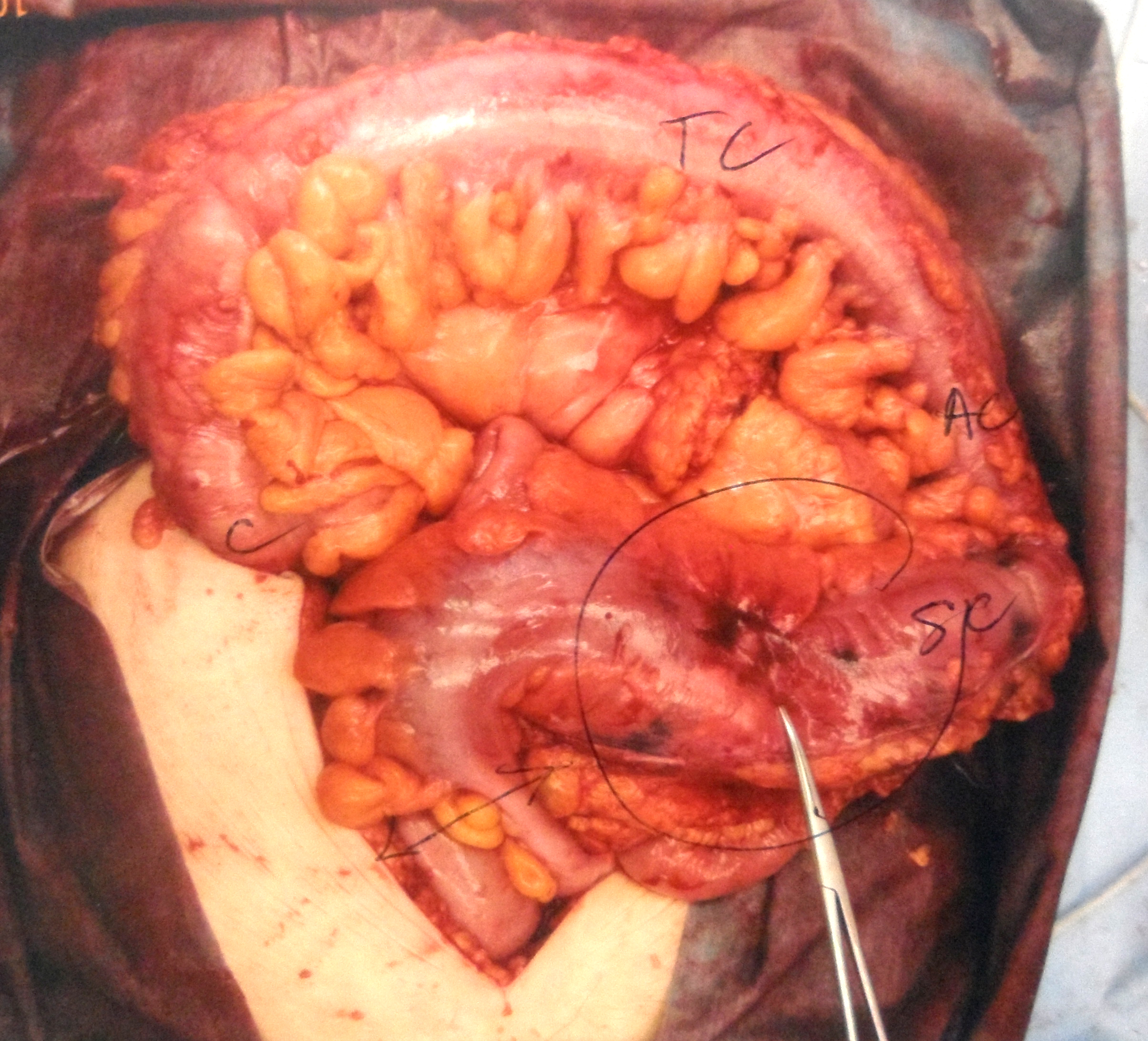 Image Result For For Colon Cancer Surgery
