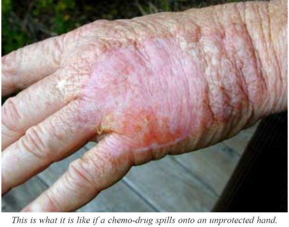 chemo swelling