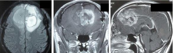 brain-augus-batam