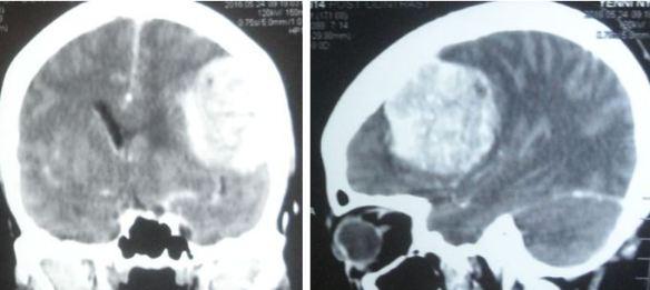 brain-tumour-yeni-singkep