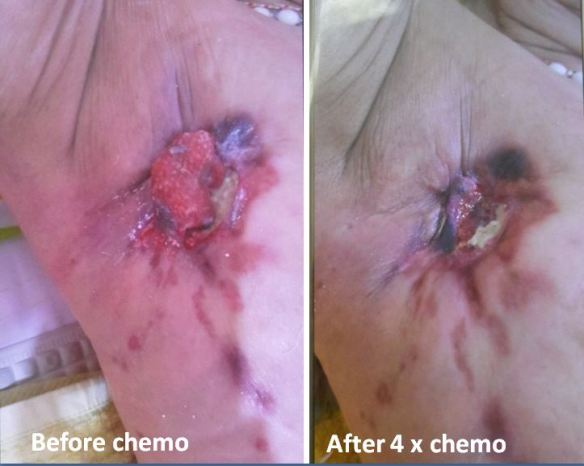 breast-before-and-after-chemo