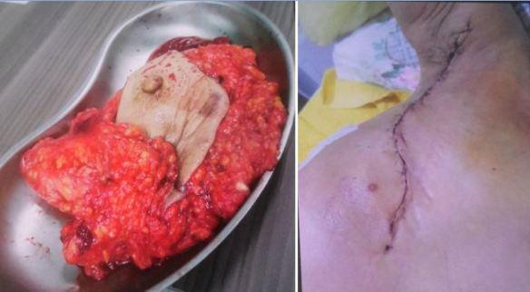 mastectomy