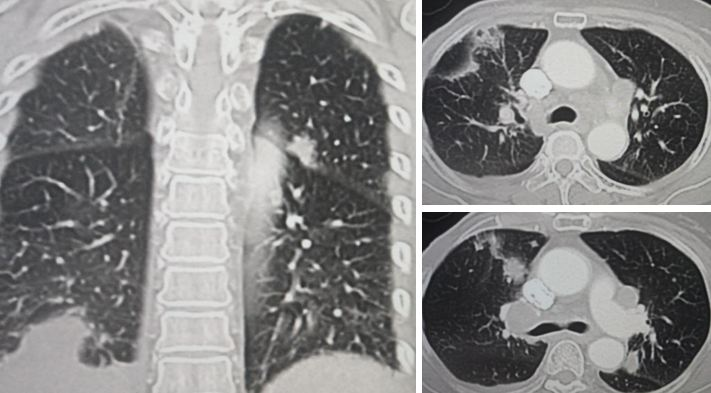 Surgery For Lung Cancer Breast Cancer Recurred...