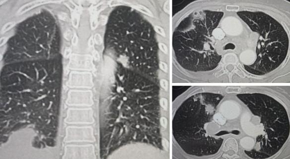 rec-lung