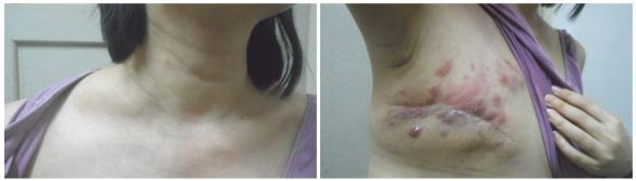 pt-1-swollen-neck-and-recurrence
